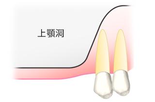 ①上顎の歯を失うと上顎洞が大きく、骨が足りない場合があります。