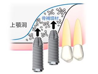 ②上顎洞粘膜を持ち上げ骨補填材を使い、インプラントを埋入します。