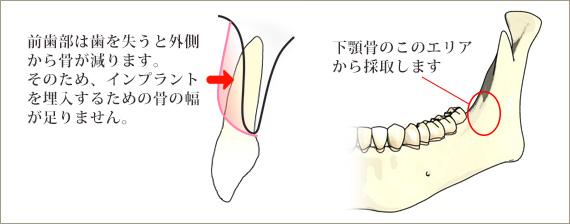 下顎枝自家骨移植