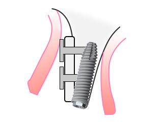②移植した骨が安定してからインプラントを埋入します。