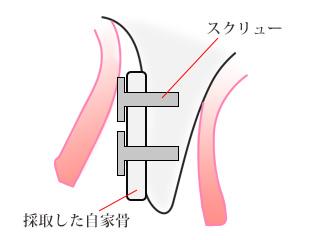 ①採取した自家骨を幅の細い部位にスクリューで固定します。